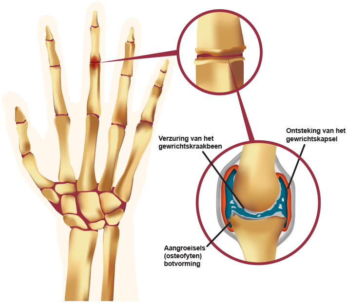 artrose in handen symptomen